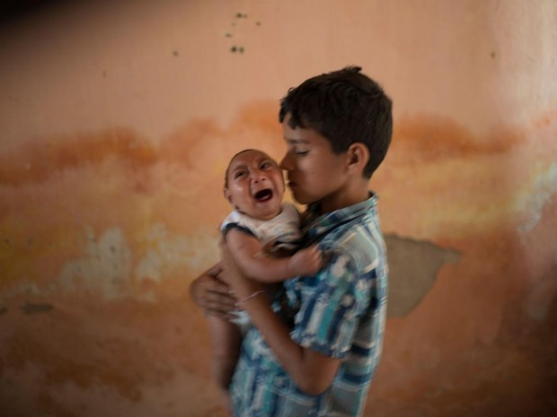 Two-month-old Jose Wesley, born with microcephaly in Brazil, is nursed by his brother AP