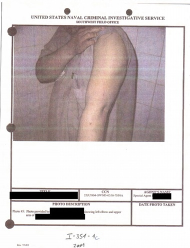 Image depicts detainee's arm injury. No further context was provided. Photograph: Department of Defense