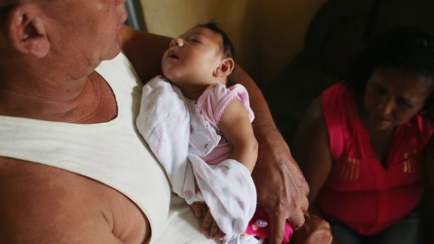 The virus is linked to thousands of cases of microcephaly in Brazil