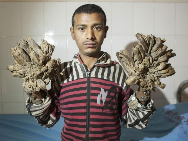 Abul Bajandar has been suffering from the condition for more than six years Suvra Kanti Das/ZUMA Wire/REX Shutterstock