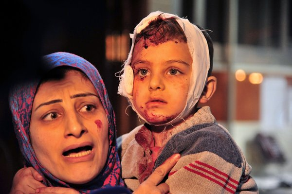 A woman and child who were injured in blasts Sunday in Sayeda Zeinab, a suburb of Damascus. SANA, via Agence France-Presse — Getty Images
