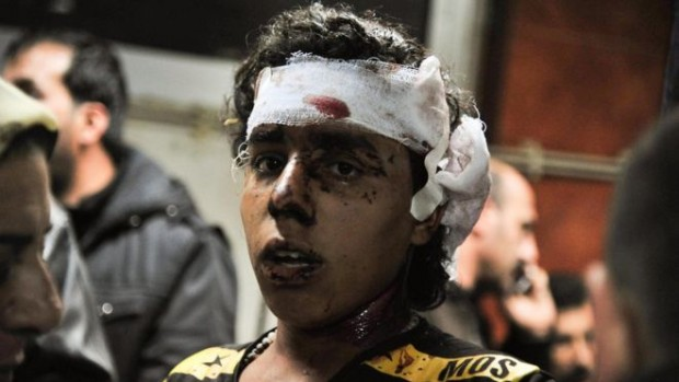 Photo released by Syrian state media shows an injured victim of the blasts in Sayyida Zeinab | AP