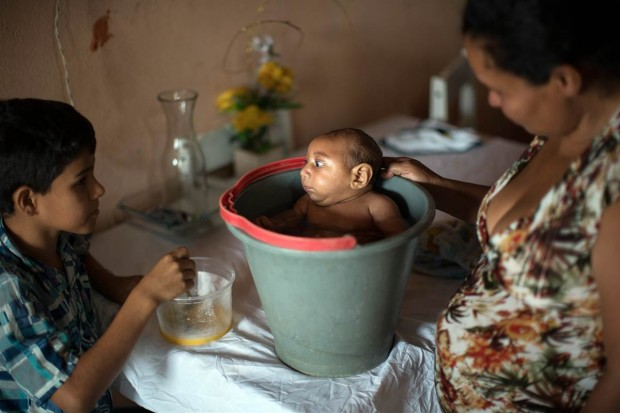 ss-160114-zika-birth-defect-brazil-08_5de9622ffb97b58a12adbd48328e0c8e.nbcnews-fp-1200-800