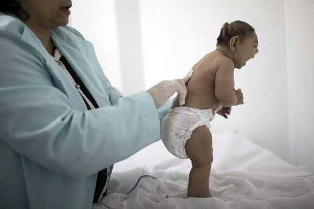 Zika-Birth-Defects.JPEG-038